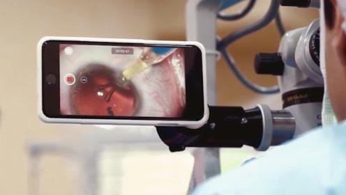 显微镜下看到的东西难记录?看看医生是如何做到同步记录的!