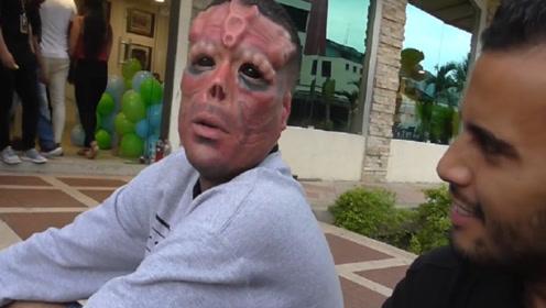 奇葩!男子花重金割掉鼻子和耳朵,只为更像红骷髅!