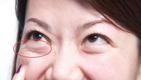有眼袋显老还很丑,教你一个方法,每天5分钟,眼袋黑眼圈都消失