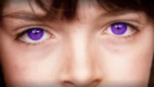 世界最罕见的眼睛,仅少数人拥有,其中一双价值一套房