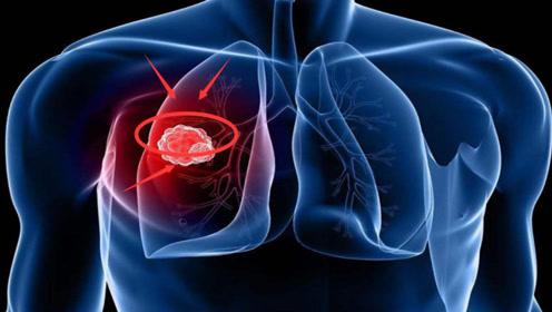 """肺癌多是""""拖""""出来的?晨起出现2""""现象"""",要及时""""检查"""""""
