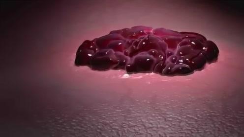 人如果吃下一勺癌细胞,到底会发生什么?这结果让人真没想到!