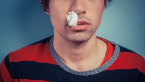 习惯性流鼻血哪里有问题?不仅是鼻子的问题!