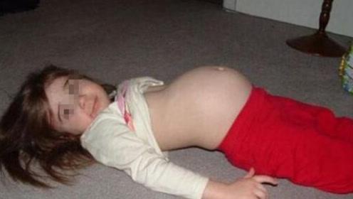 4岁女孩肚子逐日变大,检查后竟怀有身孕,知道真相后家人崩溃