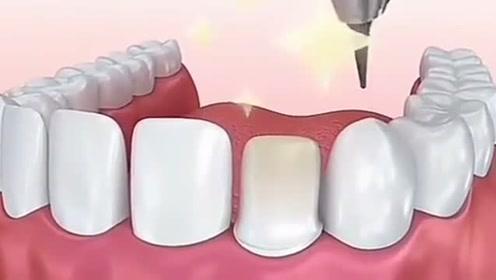 全瓷牙贴面是怎么样的?一起来看看吧!