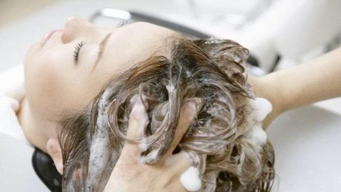 用白醋洗头可以减少头皮屑?辟谣:会刺激头皮,反而加重头皮屑