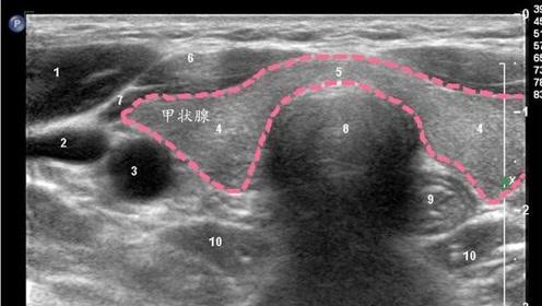 """甲状腺超声报告怎么看良恶性?出现这5个危险""""信号"""",要多留心"""