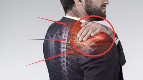 """体内有癌,肩膀先知,肩膀若出现""""1个特征"""",说明癌症来了"""