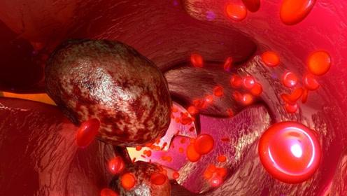 为什么看上去很健康的人,会突然查出癌症晚期?医生给出了答案