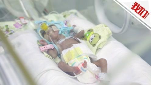 超早产危重双胞胎转院北京 医生:很多早产儿会被放弃