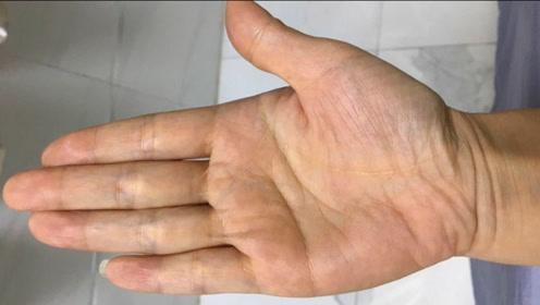 指缝大小对财运的影响很大,善佳利用,会有很好帮助