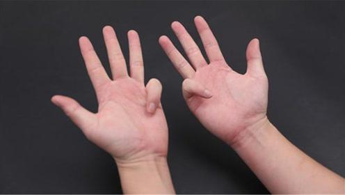 十指连大脑,每天坚持4个手部动作,记忆力越来越好,方法真实用