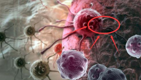 """医生:常见的这4物,专治疑难""""癌症"""",癌细胞或将""""绕道""""走"""
