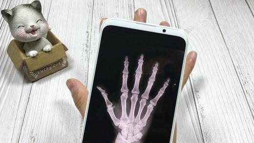 """教你开启手机""""透视""""功能,连手上的骨头都能看清楚,厉害了!"""