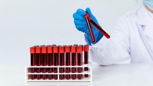 """血型与健康有关?哪个血型的人会""""长寿"""""""