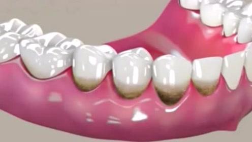 不要因为牙周病,毁掉你一口好牙,每个人都应该注意