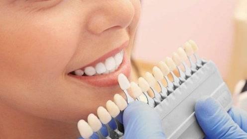 牙缝里的结石又腥又臭?医生:用这3个小妙招,让牙齿又白又亮