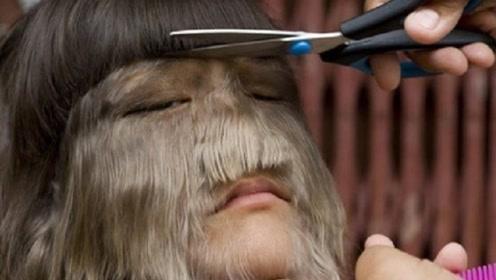 女子全身都是毛发,最长的有100厘米,剃掉之后,惊翻所有人