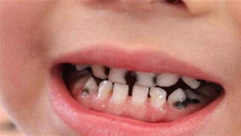 3岁的孩子满口小黑牙,医生坦言:跟吃糖无关,都是父母的无知