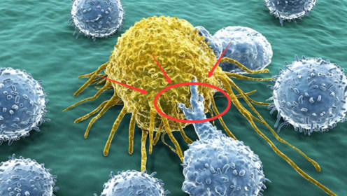 """专家提醒:确诊""""癌症""""以后,多碰这""""4类食物"""",身体或能少""""吃""""点苦头"""