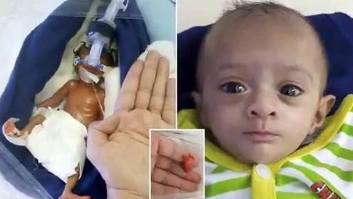 印度巴掌女婴奇迹生存 出生时仅重0.8斤脚还没爸爸的拇指大