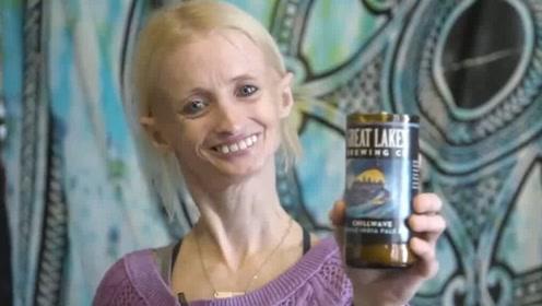 大姐患早衰症,医生说她活不过18,如今已经40多岁