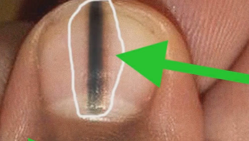 注意了!指甲上出现黑线,可能是得了这种癌症!现在看还不晚!