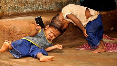 印度连体双胞胎,兄弟俩共用头盖骨,如今成功分离!