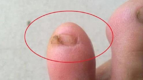 """为什么很多人的""""小脚趾"""",都长着两瓣指甲?背后原来另有隐情!"""