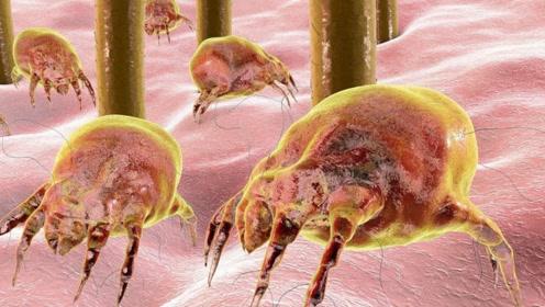 脸上的螨虫长什么样子?100倍显微镜下,看完让人汗毛竖起!