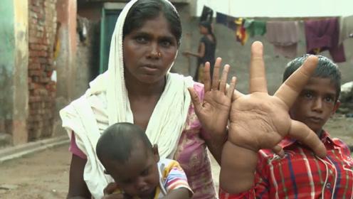 """印度男童长""""如来神掌"""",形状诡异似充气玩具,天生怪病令人心疼"""