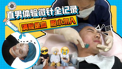 【综艺】直男体验微针全记录,满脸是血,胆小勿入