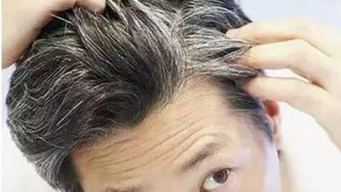 男人少白头,贫血和甲状腺是最常见原因