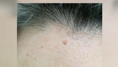 90后不止脱发连老年斑也有了?别大意,这可能是肿瘤预警!