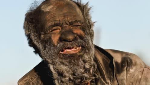 80岁老人60年不洗澡,五官模糊难辨,背后原因让人心酸