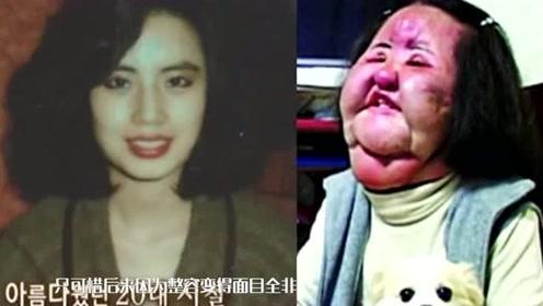 韩国美女明星韩慧景整容上瘾,导致脸部变形毁容