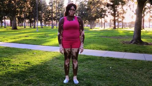 """这是个""""斑纹女人"""",皮肤掉颜色已经有11年,男友却丝毫不介意"""
