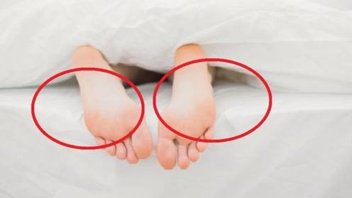 脚上的这3大特征,也许暗示了女人寿命长短,看看你中了几条