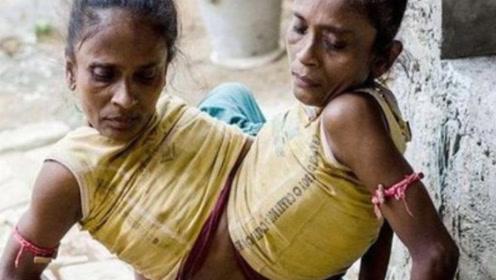 印度姐妹共用下半身,嫁给同一名男子,婚后生活令人心酸