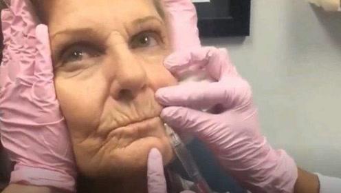 玻尿酸到底多神奇?80岁老奶奶打玻尿酸,结果让人惊艳!