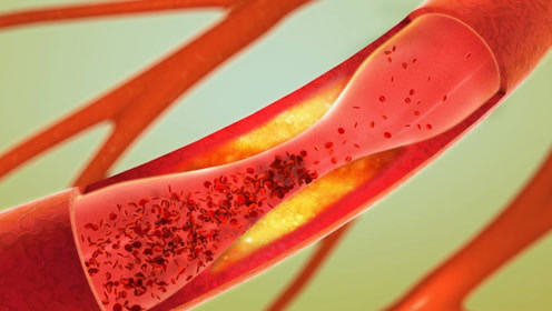 血管堵没堵,摸摸这里就知道!简单一个动作,血管通畅不堵塞
