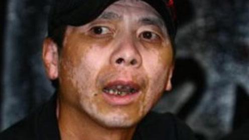 冯小刚病情进一步恶化,钱再多也治不好,妻子徐帆坦言已放弃治疗