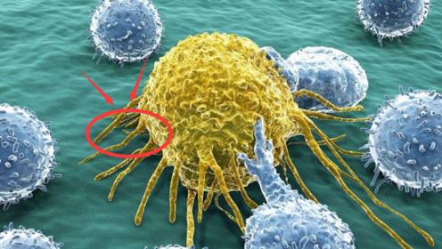 """这3种""""水果""""要少吃,尤其是第三种,会使细胞""""病变"""""""