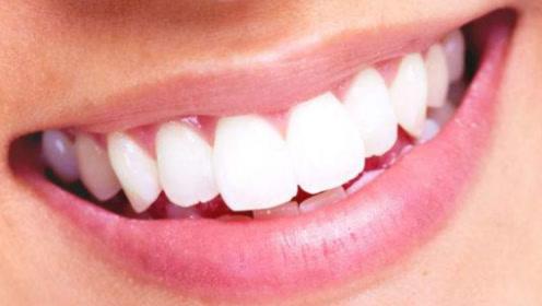 天天吸烟牙齿又黄又臭,教你一个小方法,大黄牙立马变成大白牙