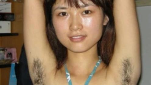 为何有些女生的体毛很旺盛,甚至比男生还多,说出来你不敢相信