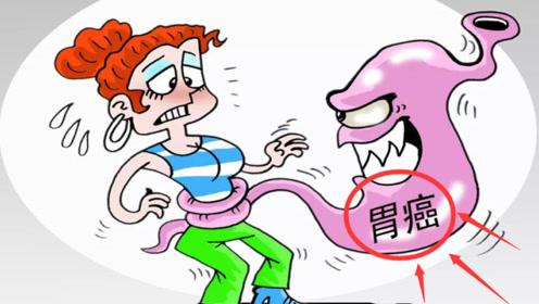 """老中医提醒:不想得""""胃癌"""",少吃这""""2种菜"""",护胃健康更长寿"""