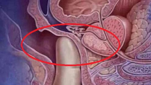 """孕妇生产时,为啥最怕男医生""""一阳指"""",过来人告诉你到底啥滋味"""