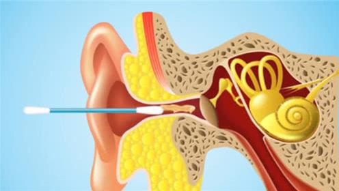 """为何说掏耳朵不能用""""棉签""""?3D动画模拟全过程,看完直冒冷汗"""