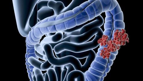 三天一次大便和一天三次大便,哪个是大肠癌?