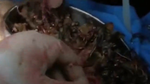 """印度26岁美女成""""惯偷"""",医生在她胃里取出3斤黄金,当场吓懵!"""